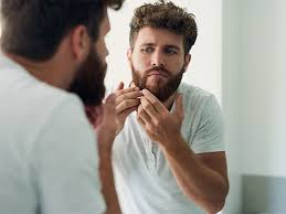minoxidil and shedding why it happens