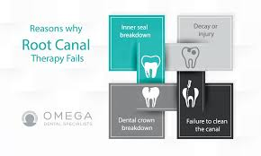 If you have insurance that covers a root canal, your out of pocket costs may average between $200 and. Failed Root Canal Symptoms Pain In Tooth After Root Canal
