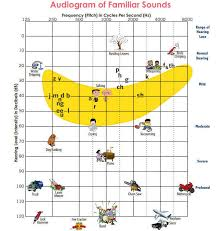 Hearing Chart Hearing Loss Types And Degrees Ucsf Benioff Childrens