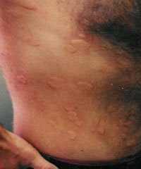 Hives (Urticaria) - Health911.com - Allergy Hives, Skin Hives, Hives ...