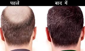 Ayurvedic Treatment For Hair