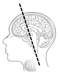 To find more ideas, put this into your search engine: Bildagentur Mauritius Images 2d Line Work Illustration Showing A Sagittally Sectioned Brain Within The Skull And Head The Neuroaxis Or Neuraxis Is Indicated By A Thick Dotted Line The Neuroaxis