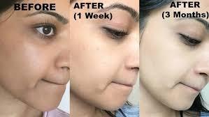 Mederma Scar Cream Mederma Pm Intensive Overnight No Scars Cream