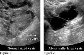УЗИ органов малого таза Медицинский портал eurolab Во всех трех видах УЗИ преобразователь посылает отраженные звуковые волны на компьютер который преобразовывает их в изображение и выводит на видеоэкран