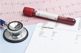 Hdl colesterol scazut tratament