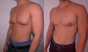 Steroids Side Effects Steroid Side Effects A Comprehensive Guide