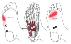 Information The Trigger Point Referred Pain Guide