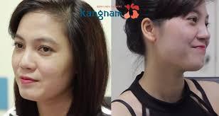 Hình ảnh kết quả sau khi nâng mũi tại thẩm mỹ viện kangnam