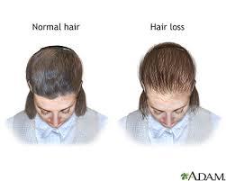 Male Pattern Baldness In Women Awesome Femalepattern Baldness MedlinePlus Medical Encyclopedia Image