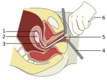 Abortion Wikipedia
