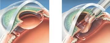 Phacoemulsification Iol Implantation Ishraq Eye Center