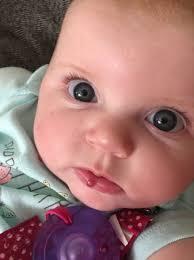 hemangioma in the lip babycenter