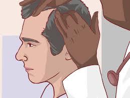 Male Pattern Baldness Stages Unique Ideas