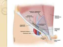 indirect inguinal hernia. hernias -unilateral or bilateral; 11. indirect inguinal hernia