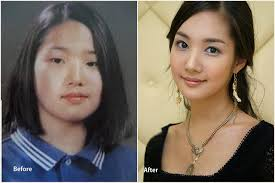 back to article the fact of park min young plastic surgery