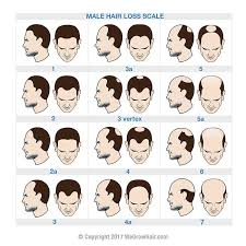 Norwood Scale Hair Loss Chart For Men With Male Pattern