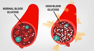 Image result for high blood sugar causes