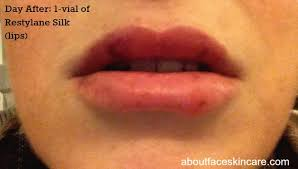 lip injection diary about face