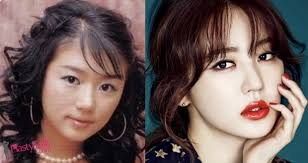 yoon eun hye before after plastic surgery