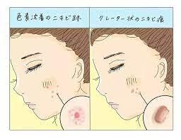 眉間 の ニキビ 原因