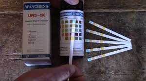 How To Test For Glucose Diabetes Using Urine Testing Strips Interpreting Positive Glucose Results