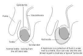 average balls size hydrocele in adults patient