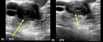 Image result for ultrasound picture of dvt in the lower leg