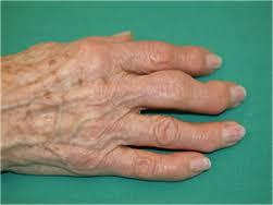 Artrose aan de vingers