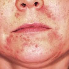 vicious cycle with peri rash