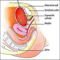 Bladder Catheterisation Caring For Your Patients Suprapubic Catheter Nursing2019