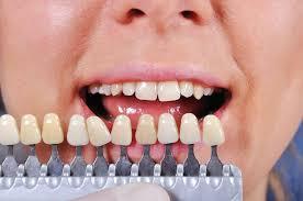 carillas dentales todo lo que necesitas saber sobre las carillas dentales pentadental