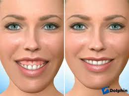 orthodontics pearls dental