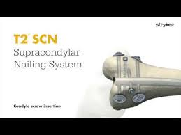 stryker trauma extremities distal fem nailing t2 supracondylar scn nail condyle