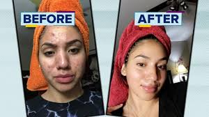 how a cleared her acne using s