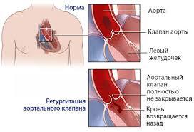Операции на сердце виды и показания Порок сердца