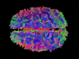seeing the brain s broken cables discovermagazine com in this view from the top of the brain a high definition fiber tracking map reveals a million nerve fibers