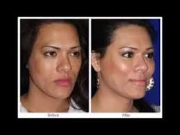 best facelift without surgery