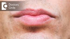 what causes discoloration below lip its management dr sachith abraham