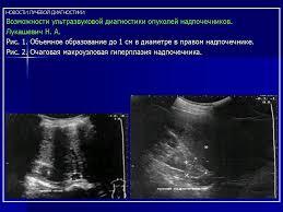 УЗИ Возможности ультразвуковой диагностики опухолей надпочечников  УЗИ Возможности ультразвуковой диагностики опухолей надпочечников