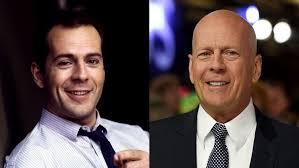 Slavní A Plešatí Bruce Willis Marek Vašut Nebo Andre Agassi Komu