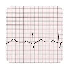 Ekg Heartbeat On Graph Paper Phd Doctor Pulse Coaster Zazzle Co Uk