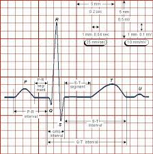 diy ecg machine on the cheap swharden com picture the