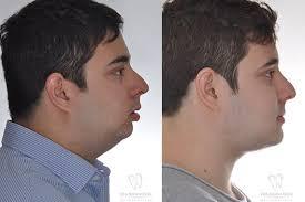 Resultado de imagem para Cirurgia ortognática