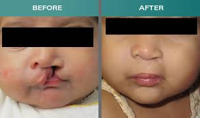 cleft lip and palate treatment in