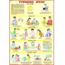 Typhoid Fever Diet Chart In Hindi Typhoid Charts