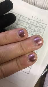 比較写真あり深爪女子が自力で深爪矯正して治すことができた話