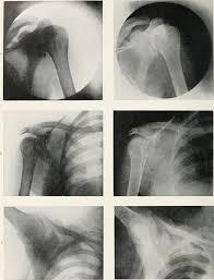 robert knox radiography x ray