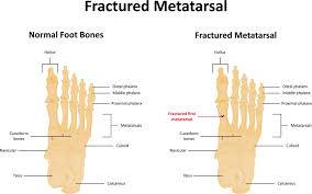 ball of foot pain. metatarsalgia (foot pain in ball). metasarlagia mets 3 ball of foot