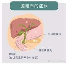 胆石 症 原因