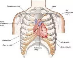 Which of the following conditions is most likely occurring in this patient the correct placement for a needle thoracostomy (or needle decompression) would be: Can 9 Ribs Be Broken By Performing Cpr Particularly The Anterior Aspects Of The Right Second Through Sixth And Left Second Through Fifth Ribs Quora